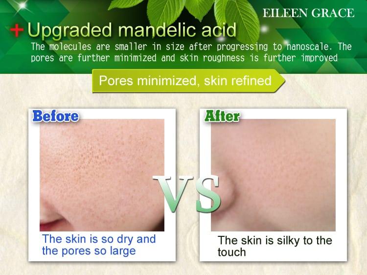Mandelic Acid Renewal Essence - Product Results